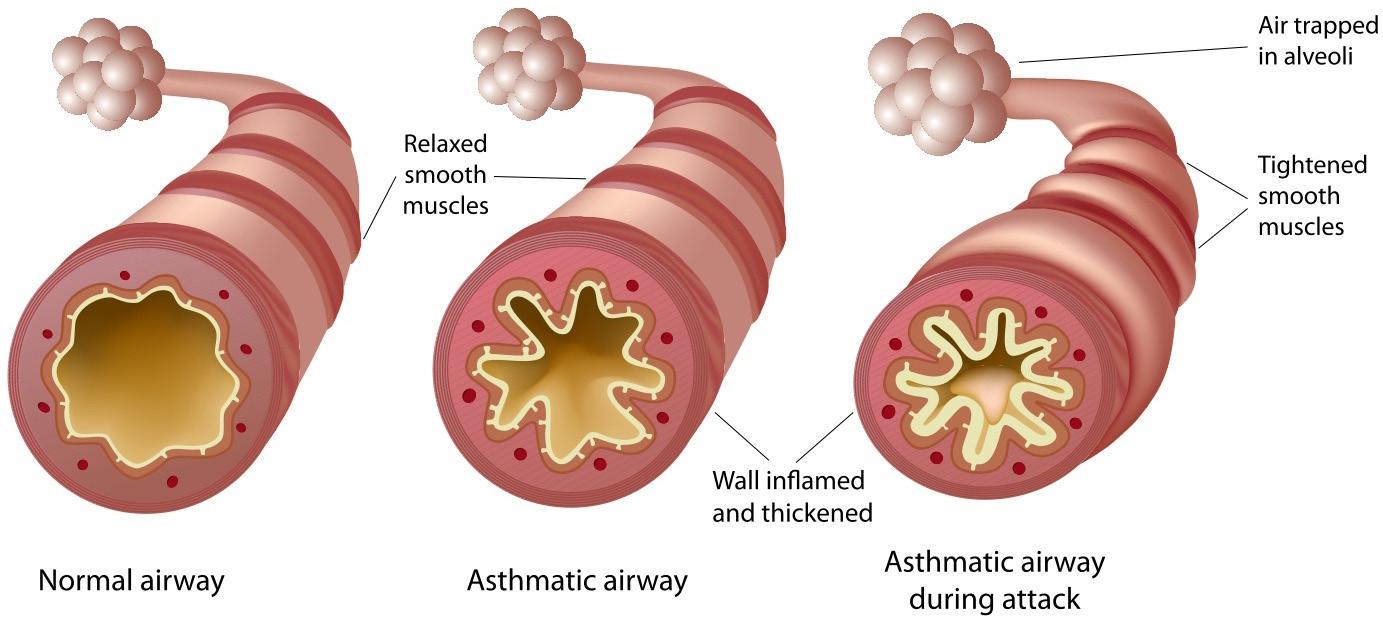 ASTHUMA